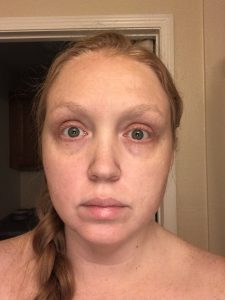 bags-under-eyes